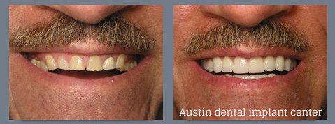 Austin Dental Implant Center - Your Austin Community